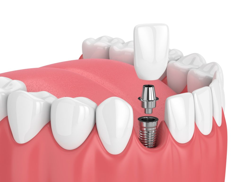 Illustration of a bottom row of teeth with a dental implant being inserted