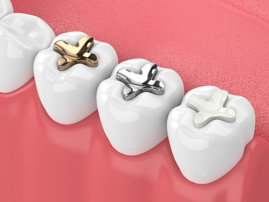 Illustration of a bottom row of teeth with different fillings applied