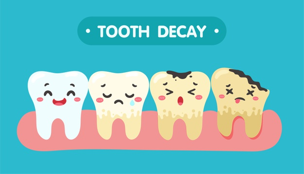 illustration of varying degrees of tooth decay